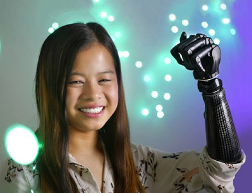 A Robotic Prosthetic Arm for Sophia